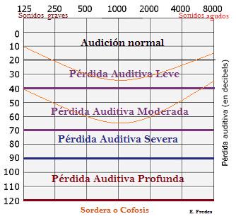 tipos audiograma